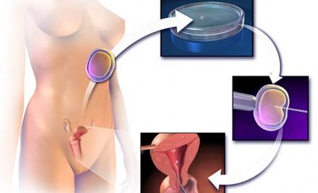 Cum decurge fertilizarea in vitro – toți pașii pe care trebuie să-i urmezi