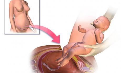 Nașterea prin cezariană – ghid complet