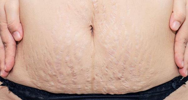 Ce trebuie să facem ca să nu avem vergeturi după sarcină