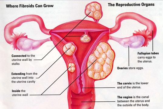 Tratamente naturiste pentru fibromul uterin