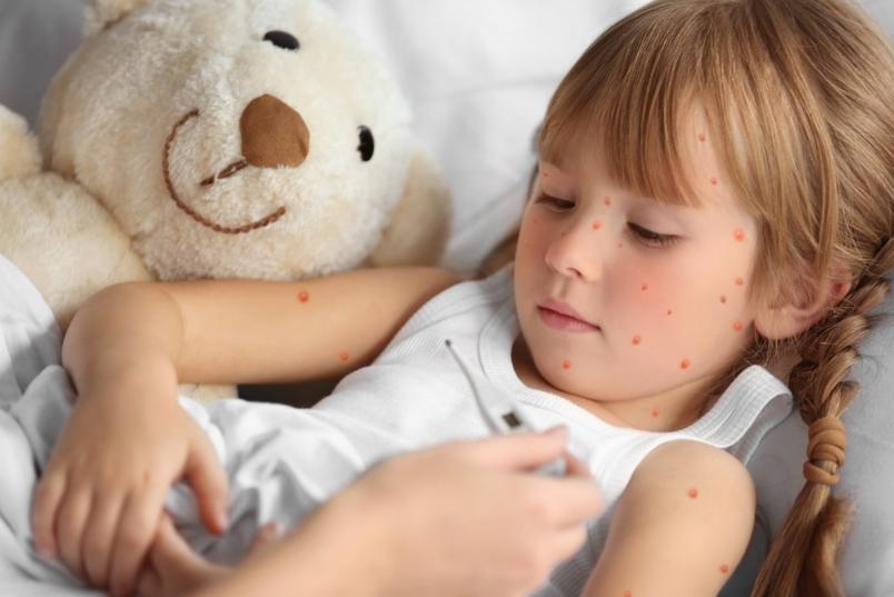 Varicela sau varsat de vant: cauze, simptome si tratamente
